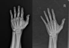 Röntgenstrålehand AP som ÄR SNED: mitt- axel Rt för brott 2nd mjuk silkespapperbulnad för metacapal ben royaltyfri bild