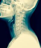 Röntgenstrålen av den cervikala ryggen/många andra röntgar bilder i min por Arkivbilder