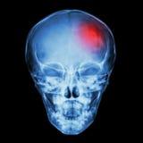 Röntgenstråleskalle av barnet och slaglängden (den cerebrovascular olyckan) arkivbild