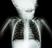 Röntgenstråleskalle och bröstkorg av barnet fotografering för bildbyråer