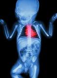 Röntgenstrålespädbarns kropp med hjärtsjukdomen Arkivfoton