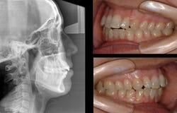 Röntgenstrålestudie Royaltyfria Foton