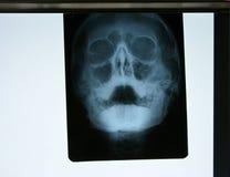 Röntgenstraal Royalty-vrije Stock Foto's