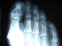 Röntgenstraal stock foto's
