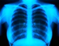 Röntgenstraal Stock Fotografie
