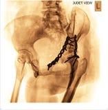 Röntgenstraal Stock Foto