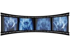 Röntgenstraal Royalty-vrije Stock Afbeelding