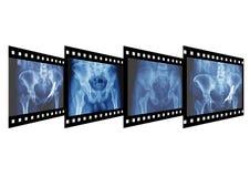 Röntgenstraal Stock Afbeelding