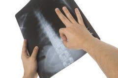 Röntgenstraal Royalty-vrije Stock Afbeeldingen