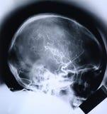 Röntgenstraal/ader Stock Foto