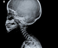 Röntgenstraal die van hoofd een deel van hals tonen stock fotografie