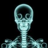 Röntgenstraal hogere borst inbegrepen schedel Royalty-vrije Stock Afbeeldingen