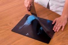 Röntgenstraal met de handen van de arts op de lijst, die twee schoten vergelijkt royalty-vrije stock fotografie