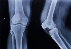 Röntgenstraal normale knie royalty-vrije stock afbeelding