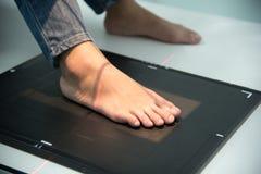 Röntgenstraal scann bij voet in het ziekenhuis, Medische en Gezondheidszorgconcept stock afbeelding