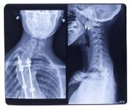 Röntgenstraal, Scoliose royalty-vrije stock afbeeldingen