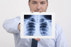 Röntgenstraal vóór de Menselijke Borst royalty-vrije stock afbeeldingen