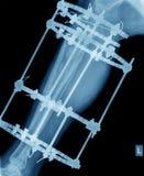 Röntgenstraal van been met schroefbevestiging Stock Foto's