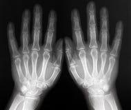 Röntgenstraal van beide handen - radiografie Stock Foto's