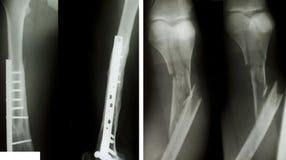 Röntgenstraal van beide menselijke benen royalty-vrije stock fotografie