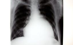 Röntgenstraal van borst, vergroot hart Stock Afbeelding
