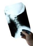 Röntgenstraal van de cervicale stekel Stock Foto