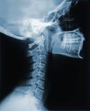 Röntgenstraal van de Hals Stock Afbeeldingen