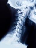 Röntgenstraal van de hals en de schedel - zijaanzicht Stock Foto