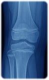 Röntgenstraal van de knie Stock Fotografie