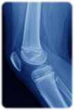 Röntgenstraal van de knie Stock Foto