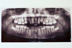 Röntgenstraal van de tanden van de jongen Stock Foto's