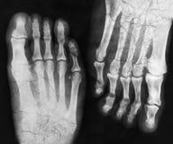 Röntgenstraal van de voet Stock Foto's