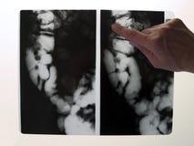 Röntgenstraal van dubbelpunt Royalty-vrije Stock Foto's