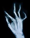 Röntgenstraal van een hand stock foto's