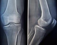 Röntgenstraal van een knie Stock Afbeelding