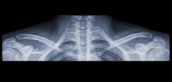 Röntgenstraal van een schouderpanorama Royalty-vrije Stock Afbeeldingen