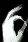 Röntgenstraal van hand Royalty-vrije Stock Afbeeldingen