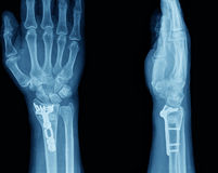 Röntgenstraal van hand Royalty-vrije Stock Foto's