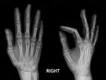 Röntgenstraal van hand Stock Afbeeldingen