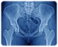 Röntgenstraal van het bassin Stock Foto's