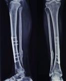 Röntgenstraal van het gebroken been na chirurgie Royalty-vrije Stock Afbeeldingen