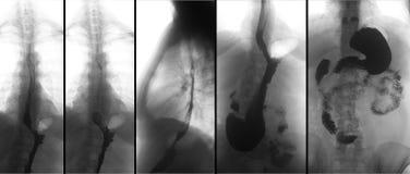 Röntgenstraal van het hogere maagdarmkanaal UGI met barium Hiatalingewandsbreuk Negatief stock foto