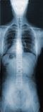 Röntgenstraal van het Torso Royalty-vrije Stock Foto