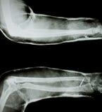 Röntgenstraal van menselijk wapen royalty-vrije stock foto's