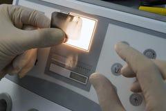 Röntgenstraal van menselijke tanden royalty-vrije stock fotografie