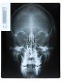 Röntgenstraal van tandimplant Royalty-vrije Stock Foto's