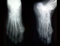 Röntgenstraal van volledige voet in twee projecties Royalty-vrije Stock Afbeelding