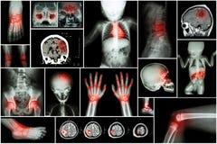 Röntgenstraal veelvoudig deel van kind 's lichaam & veelvoudige ziekte (slag, hersenentumor, reumatoïde artritis, sinusitis, jich royalty-vrije stock foto's
