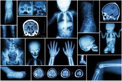 Röntgenstraal veelvoudig deel van kind 's lichaam & veelvoudige ziekte (slag, hersenentumor, reumatoïde artritis, sinusitis, jich stock afbeeldingen