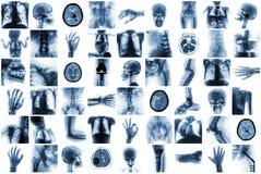 Röntgenstraal veelvoudig deel van mens en vele medische voorwaarde en ziekte royalty-vrije stock afbeelding